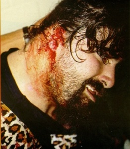Foley_Ear_Injury